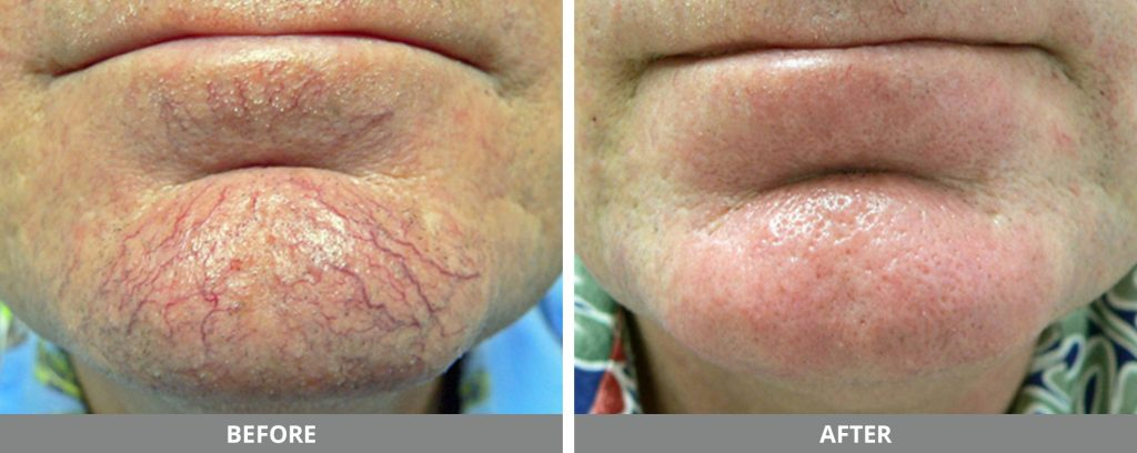 IPL Photofacial | Kucumber