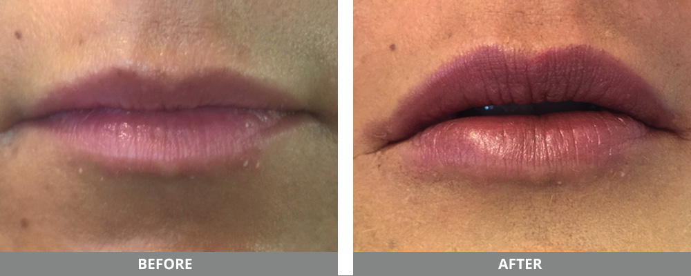 Lip Thread Lift Near Me